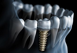 jaw with dental implant