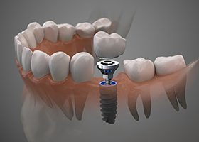 dental implants on blue background