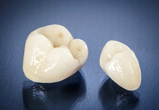 dental crowns sitting on a black countertop