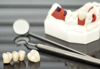 dental crowns sitting next to dental tools and a model of a mouth