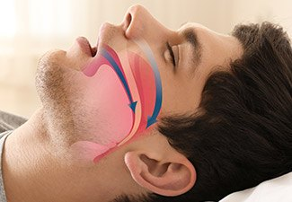man snoring with diagram showing nasal passage