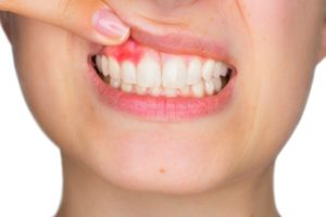 person with signs of gum disease