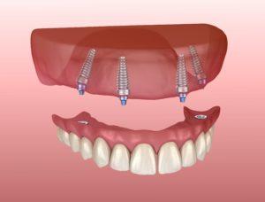 Digital model of implant dentures in Leawood